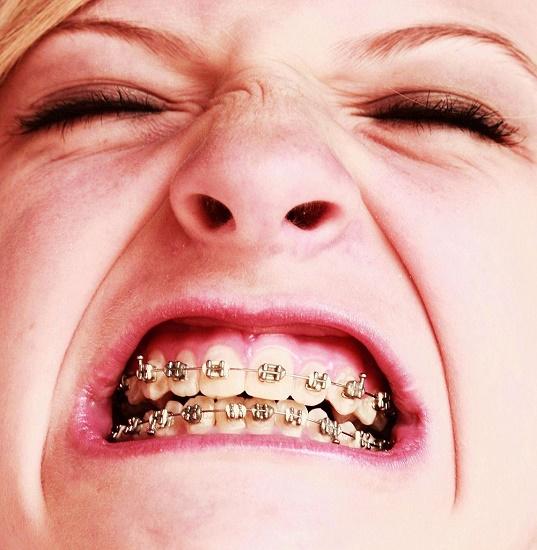 Invisalign zobni aparat je ena od najboljših rešitev na trgu