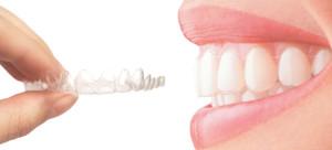 Nevidni zobni aparat