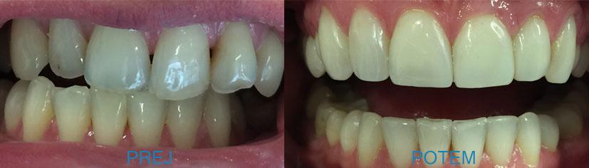 Nevidni zobni aparat za učinkovito ravnanje zob